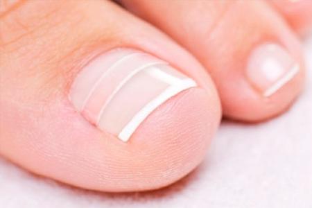 Грибок ногтей народный способ